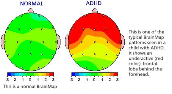 Long With ADHD Dr Lubar 1995 Has Published 10 Year Follow Ups On Cases And Found That In Approximately 80 Of Patients Neurofeedback Substantially
